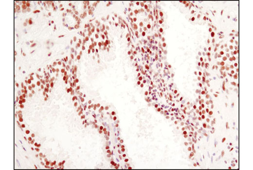 Immunohistochemical analysis of paraffin-embedded human prostate carcinoma using CtBP1 (D2D6) Rabbit mAb.