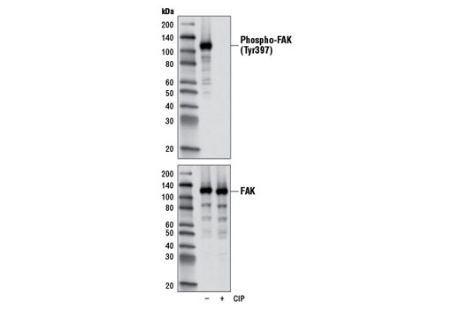 Western blot analysis of extracts from A549 cells, untreated or treated with calf intestinal phosphatase (CIP), using Phospho-FAK (Tyr397) (D20B1) Rabbit mAb (upper) and FAK Antibody #3285 (lower).