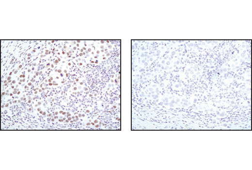 Immunohistochemical analysis of paraffin-embedded human breast carcinoma using CDK9 (C12F7) Rabbit mAb in the presence of control peptide (left) or antigen specific peptide (right).