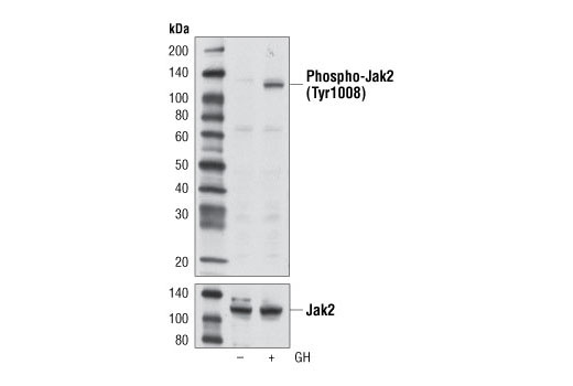 Monoclonal Antibody - Phospho-Jak2 (Tyr1008) (D4A8) Rabbit mAb, UniProt ID O60674, Entrez ID 3717 #8082 - Immunology and Inflammation