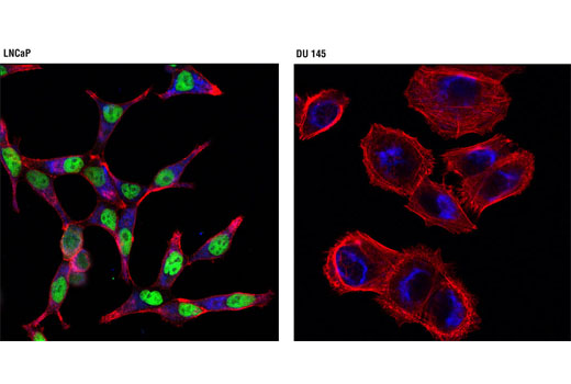 Confocal immunofluorescent analysis of LNCaP (left) and DU 145 (right) cells using Androgen Receptor (D6F11) XP<sup>®</sup> Rabbit mAb (Alexa Fluor<sup>®</sup> 488 Conjugate) (green) and Hexokinase I (C35C4) Rabbit mAb (Alexa Fluor<sup>®</sup> 647 Conjugate) #3540 (blue pseudocolor). Actin filaments were labeled with DY-554 phalloidin (red).