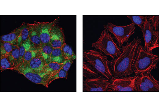 Confocal immunofluorescent analysis of β-TC-6 cells (left) and HeLa cells (right) using C-Peptide Antibody (green). Actin filaments have been labeled with DY-555 phalloidin (red). Blue pseudocolor = DRAQ5<sup>®</sup> #4084 (fluorescent DNA dye).