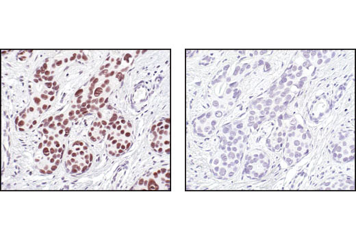 Immunohistochemical staining of paraffin-embedded human breast carcinoma, using LSD1 Antibody preincubated with control peptide (left) or antigen-specific peptide (right).