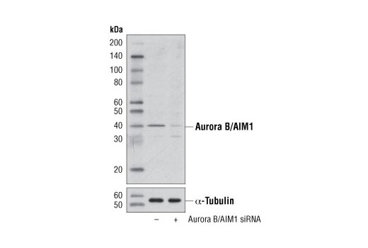 siRNA Transfection Spindle Stabilization