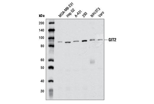 Monoclonal Antibody - GIT2 (D11B8) Rabbit mAb - Western Blotting, UniProt ID Q14161, Entrez ID 9815 #8072, Git2