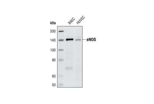 Western blot analysis of extracts from BAEC and HUVEC cells, using eNOS (49G3) Rabbit mAb.