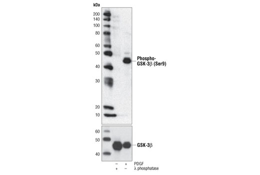 Western blot analysis of extracts from NIH/3T3 cells, λ-phosphatase- or PDGF-treated, using Phospho-GSK-3β (Ser9) (5B3) Rabbit mAb (upper) or GSK-3β (27C10) Rabbit mAb #9315 (lower).