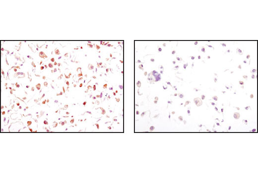 Immunohistochemical analysis of paraffin-embedded wild type (left) or GSK-3β (-/-) MEFs, using Phospho-GSK-3β (Ser9) (5B3) Rabbit mAb. (MEF wild type, GSK-3α knock out and GSK-3β knock out cells were kindly provided by Dr. Jim Woodgett, University of Toronto, Canada).