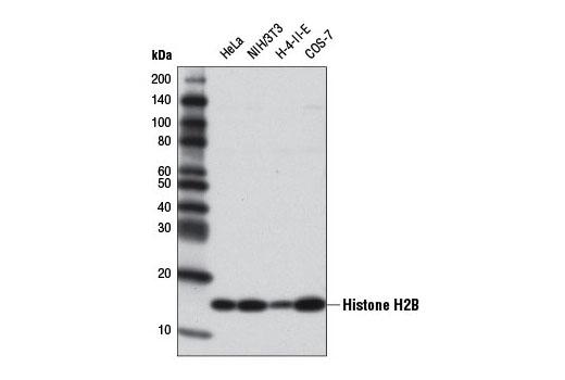 Polyclonal Antibody - Histone H2B (V119) Antibody - Western Blotting, UniProt ID P33778, Entrez ID 3018 #8135, Histone H2b