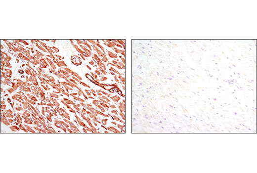 Immunohistochemical analysis of paraffin-embedded human heart using Pan-Actin (D18C11) Rabbit mAb in the presence of control peptide (left) or antigen-specific peptide (right).
