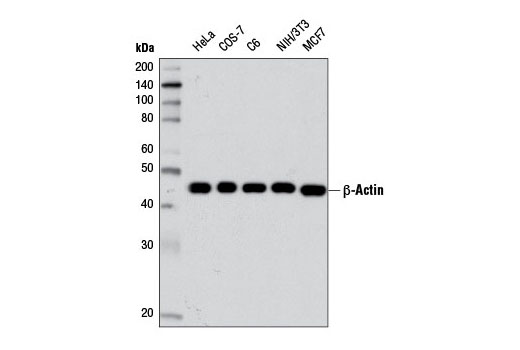 Western blot analysis of extracts from various cell lines using β-Actin (D6A8) Rabbit mAb.