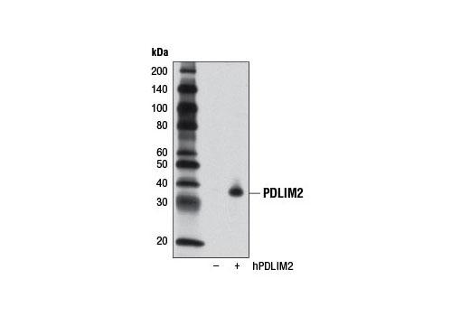 Polyclonal Antibody Actinin Binding