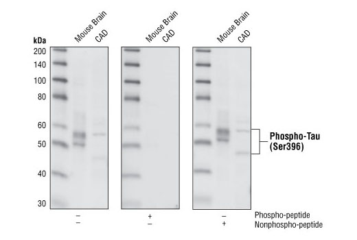 Western blot analysis of extracts from mouse brain and CAD cells, using Phospho-Tau (Ser396) (PHF13) Mouse mAb. The phospho-specificity of the antibody was verified by peptide blocking using no peptide, phospho-peptide or nonphospho-peptide.