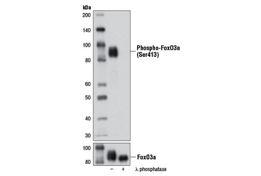 Western blot analysis of extracts from 293T cells transfected with FoxO3a, untreated (-) or treated with λ phosphatase (+), using Phospho-FoxO3a (Ser413) (D77C9) Rabbit mAb (upper) and FoxO3a (75D8) Rabbit mAb #2497 (lower).