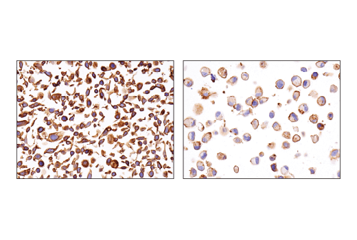 Immunohistochemical analysis of paraffin-embedded SW480 cell pellet (left, high-expressing) or SK-MEL-5 cell pellet (right, low-expressing) using ASCT2 (D7C12) Rabbit mAb.