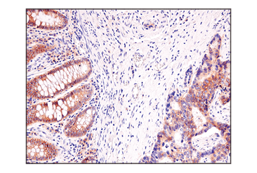 Immunohistochemical analysis of paraffin-embedded human colon carcinoma using ASCT2 (D7C12) Rabbit mAb.