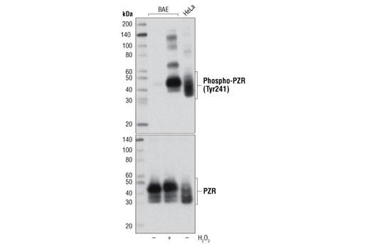 Monoclonal Antibody - Phospho-PZR (Tyr241) (D6F9) Rabbit mAb, UniProt ID O95297, Entrez ID 9019 #8131, Pzr