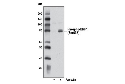 Western blot analysis of extracts from PC-12 cells, untreated or treated with Forskolin #3828 (20 μM, 1 hr), using Phospho-DRP1 (Ser637) (D3A4) Rabbit mAb.