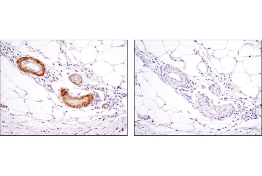 Immunohistochemical analysis of paraffin-embedded human colon using PKM1 (D30G6) XP<sup>® </sup>Rabbit mAb in the presence of control peptide (left) or antigen-specific peptide (right).