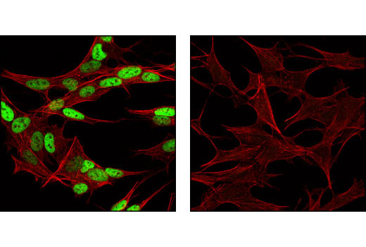 Confocal immunofluorescent analysis of SH-SY5Y cells labeled with AP-2β Antibody (green, left) compared to a nonspecific negative control antibody (right). Actin filaments have been labeled with Alexa Fluor® 555 phalloidin (red).