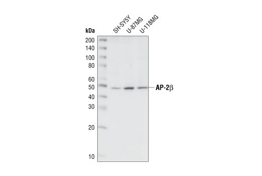Western blot analysis of extracts from various cell lines, using AP-2β Antibody.