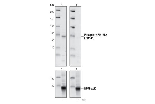 Western blot analysis of Sup-M2 cell lysate, using Phospho-ALK (Tyr1586) (3B4) Rabbit mAb (A and B), and ALK Antibody (C and D).The phospho-specificity of this antibody was characterized by treating the membrane with calf intestinal alkaline phosphatase (CIP) (B and D) after Western transfer.