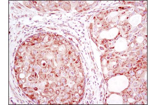 Monoclonal Antibody - YB1 (D2B12) Rabbit mAb, UniProt ID P67809, Entrez ID 4904 #8475 - #8475