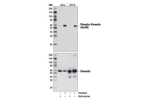 Monoclonal Antibody - Phospho-Vimentin (Ser56) (D5H2) Rabbit mAb, UniProt ID P08670, Entrez ID 7431 #7391, Cytoskeletal Signaling