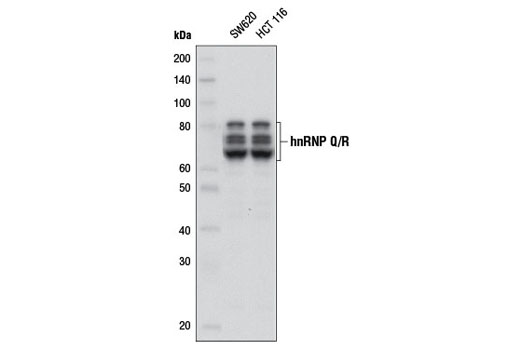 Western blot analysis of extracts from SW620 and HCT 116 cells using hnRNP Q/R (D18B2) Rabbit mAb.