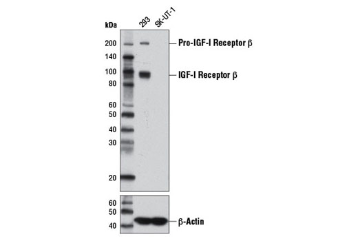Western blot analysis of extracts from 293 (IGF-I receptor β+) and SK-UT-1 (IGF-I receptor β-) cells using IGF-I Receptor β (D23H3) XP<sup>®</sup> Rabbit mAb (upper) or β-Actin Antibody #4967 (lower).