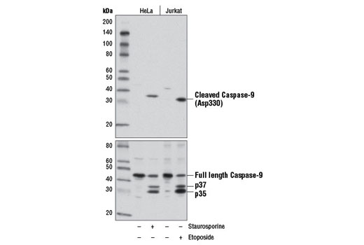 Western blot analysis of extracts from HeLa and Jurkat cells, untreated or treated with Staurosporine #9953 (1 μM, 3 hr) or etoposide (25 μM, overnight), using Cleaved Caspase-9 (Asp330) (D2D4) Rabbit mAb (upper) or total Caspase-9 Antibody (Human Specific) #9502 (lower).