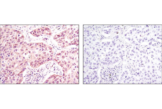Immunohistochemical analysis of paraffin-embedded human lung carcinoma using p38 MAPK (D13E1) XP<sup>® </sup>Rabbit mAb in the presence of control peptide (left) or antigen-specific peptide (right).