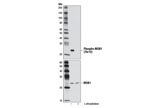 Western blot analysis of extracts from Ramos cells, untreated or λ phosphatase-treated, using Phospho-MOB1 (Thr12) (D2E3) Rabbit mAb (upper) and MOB1 Antibody #3863 (lower).