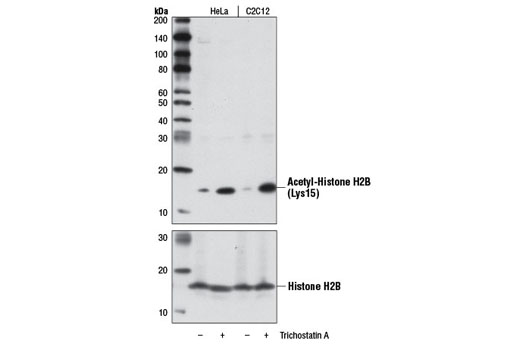 Western blot analysis of extracts from HeLa and C2C12 cells, untreated (-) or treated (+) with Trichostatin A (TSA) #9950 (1 μM, 18 hr), using Acetyl-Histone H2B (Lys15) (D8H1) XP<sup>®</sup> Rabbit mAb (upper) and Histone H2B (V119) Antibody #8135 (lower).