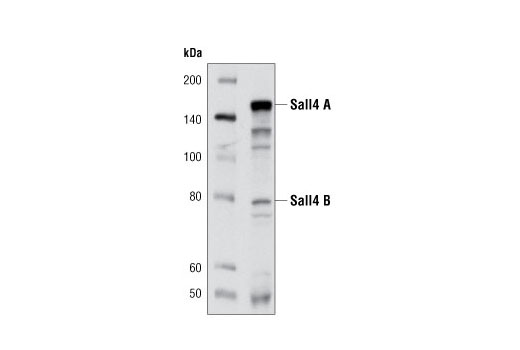 Western blot analysis of extracts from NCCIT cells using Sall4 (D16H12) Rabbit mAb.