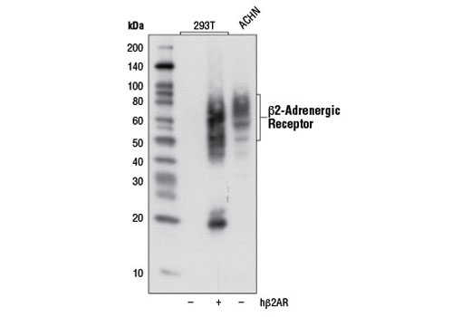 Western blot analysis of ACHN cells or 293T cells, either mock transfected (-) or transfected (+) with a cDNA expression construct encoding human β2-adrenergic receptor (hβ2AR), using β2-Adrenergic Receptor (D6H2) Rabbit mAb.