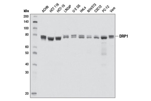Western blot analysis of extracts from various cell lines using DRP1 (D6C7) Rabbit mAb.