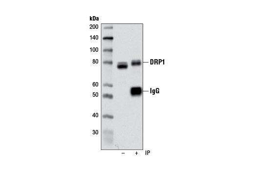 Immunoprecipitation of extracts from HCT 116 cells using DRP1 (D6C7) Rabbit mAb. The western blot was probed using the same antibody. Lane 1 is 10% input.