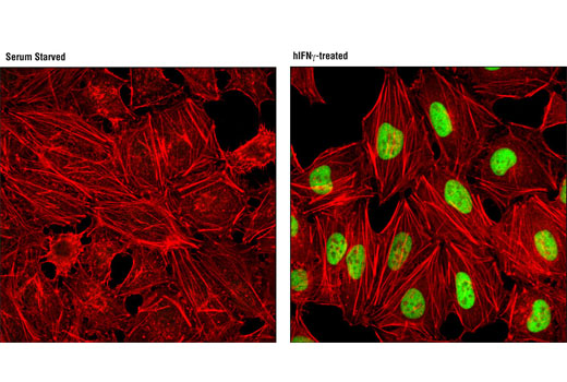 Immunofluorescence Image 1: IRF-1 (D5E4) XP® Rabbit mAb