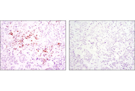 Imunohistochemical analysis of paraffin-embedded human breast carcinoma using IRF-1 (D5E4) XP<sup>®</sup> Rabbit mAb in the presence of control peptide (left) or antigen-specific peptide (right).