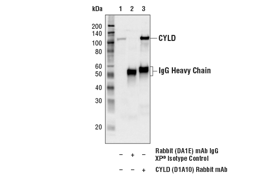 Immunoprecipitation Image 1: CYLD (D1A10) Rabbit mAb