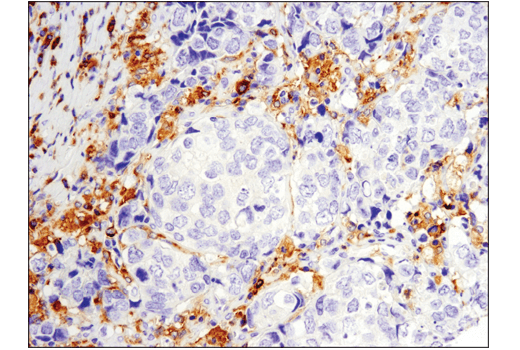 Immunohistochemical analysis of paraffin-embedded human squamous cell lung carcinoma using Btk (D3H5) Rabbit mAb performed on the Leica® Bond™ Rx.