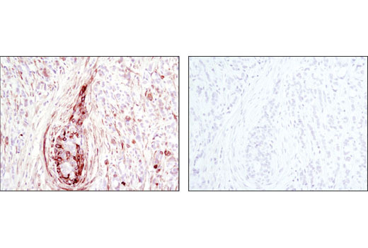 Immunohistochemical analysis of paraffin-embedded human breast carcinoma, control (left) or λ phosphatase-treated (right), using Phospho-HSP27 (Ser82) (D1H2F6) XP<sup>®</sup> Rabbit mAb.