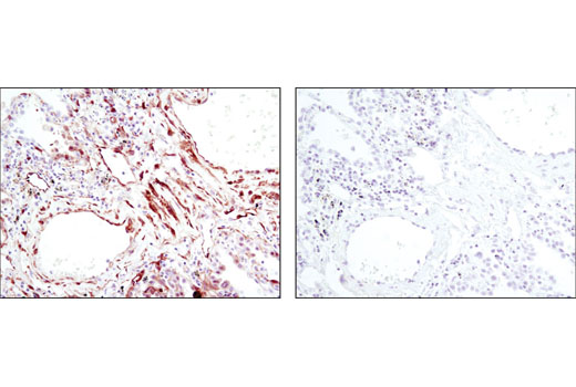 Immunohistochemical analysis of paraffin-embedded human lung carcinoma using Phospho-HSP27 (Ser82) (D1H2F6) XP<sup>®</sup> Rabbit mAb in the presence of control peptide (left) or antigen-specific peptide (right).
