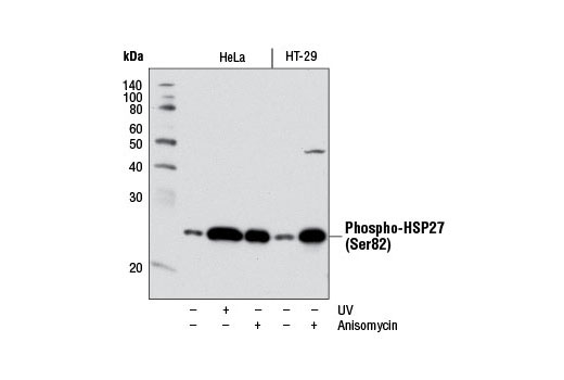 Western blot analysis of extracts from HeLa or HT-29 cells, untreated (-) or treated (+) with either UV (40 mJ/cm<sup>2</sup> with 30 min recovery) or anisomycin (25 μg/mL, 30 min), using Phospho-HSP27 (Ser82) (D1H2F6) XP<sup>®</sup> Rabbit mAb.