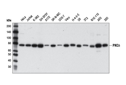 Western blot analysis of extracts from various cell lines using PKCδ (D10E2) Rabbit mAb.