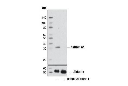 siRNA Transfection Rna Export from Nucleus