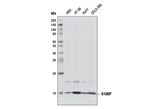 Western blot analysis of extracts from various cell lines using S100P Antibody.