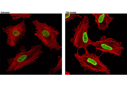Confocal immunofluorescent analysis of HeLa cells, untreated (left) or treated with Trichostatin A (TSA) #9950 (1 uM, 4 hr; right), using Acetyl-Histone H3 (Lys27) (D5E4) XP<sup>®</sup> Rabbit mAb (green). Actin filaments were labeled with DY-554 phalloidin (red).