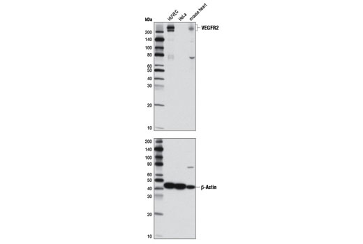 Western blot analysis of extracts from HUVE cells, HeLa cells and mouse heart using VEGF Receptor 2 (D5B1) Rabbit mAb for VEGFR2 expression (upper) and β-Actin (D6A8) Rabbit mAb (#8457) for loading control. (The 80 kDa bands represent partial degradation product).